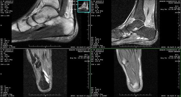 МРТ стопы и голеностопа