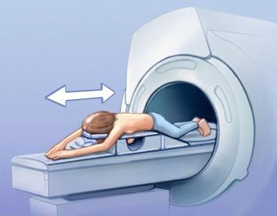 пройти МРТ молочных желез